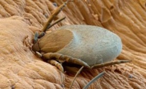 Are Bed Bugs In Japan